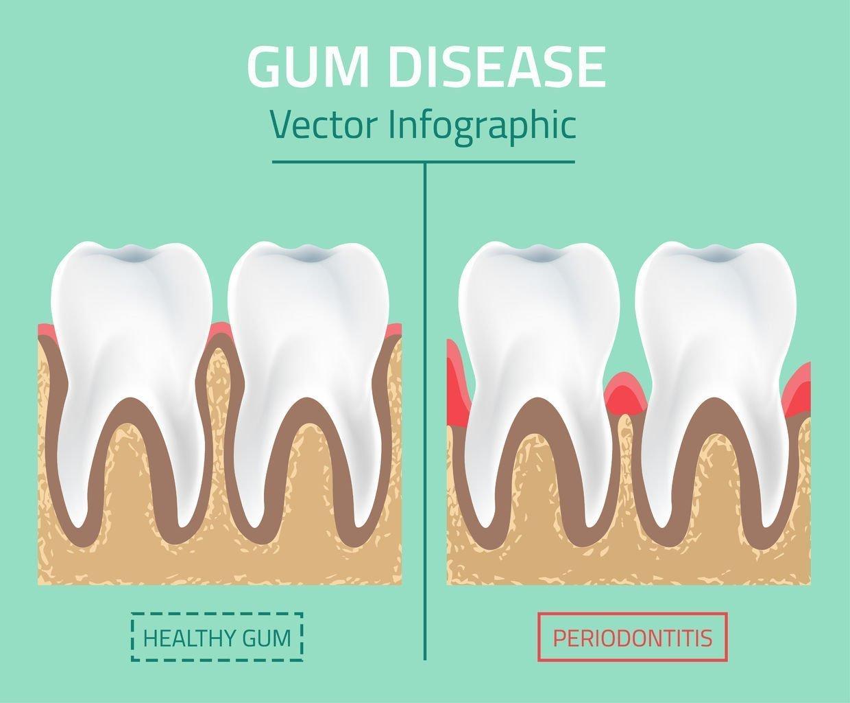 Gum-disease-mesa-az