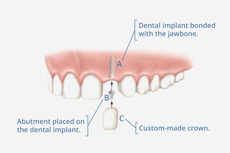 dental implant mesa az