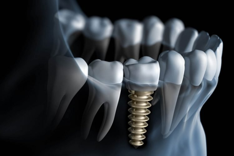dental-implants-mesa-arizona