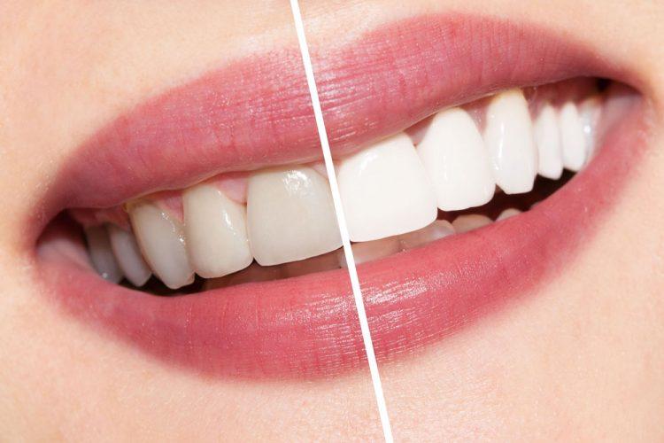 teeth-whitening-mesa-arizona