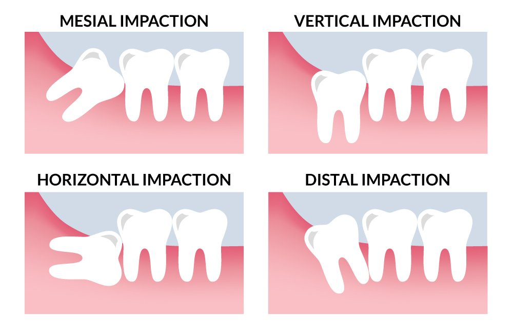 Types-of-Impaction