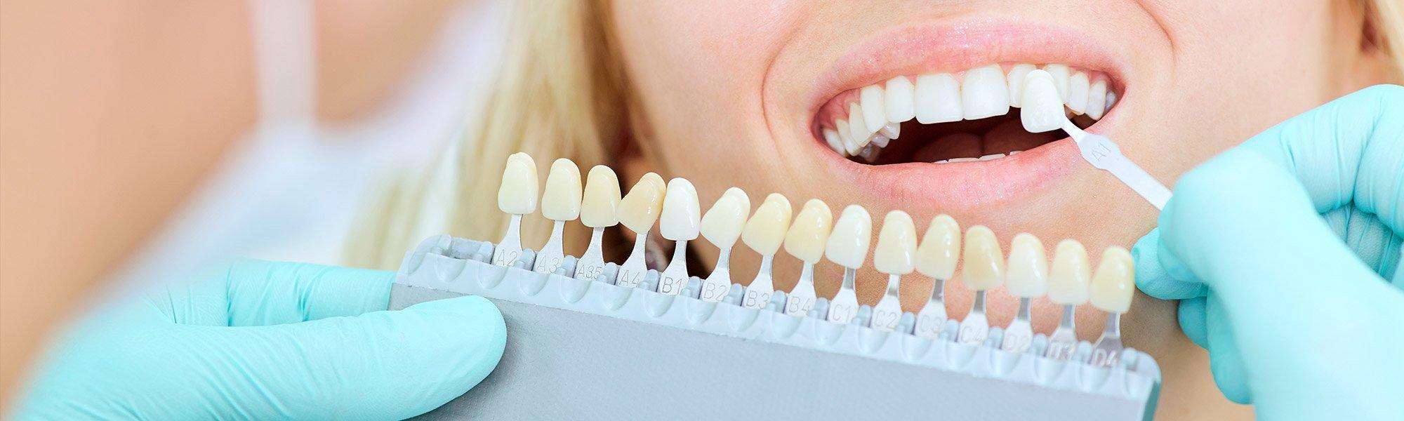 dental-veneer-mesa-az