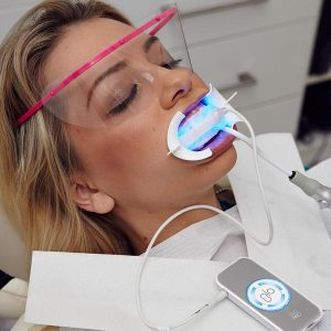 glo-teeth-whitening-mesa