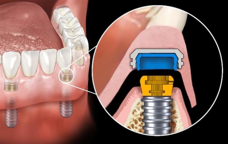 implant-retained-dentures-Mesa