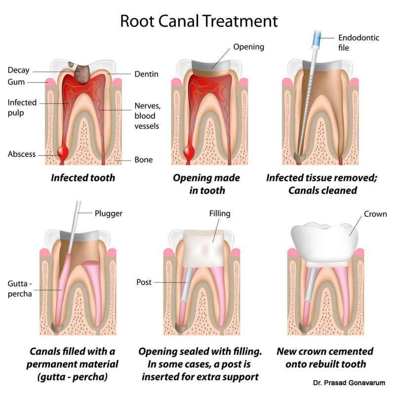 root-canal-therapy-mesa-az