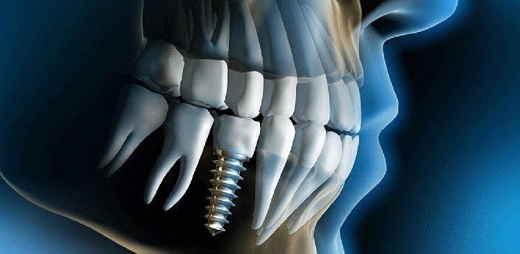 Dental-Implants-in-mesa-az