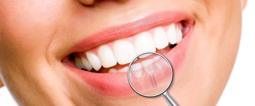 dental-implant-mesa-az
