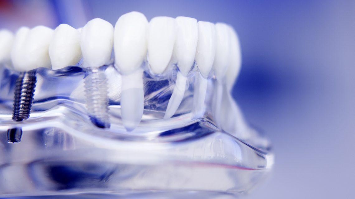 eastport-dental-Implant