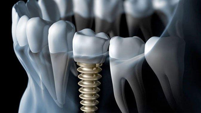 dental-implants-mesa-az