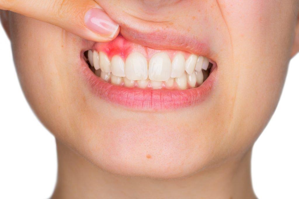 7-signs-dental-abscess