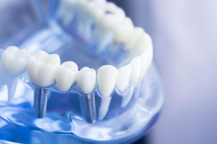same-day-dental-implant-mesa-az