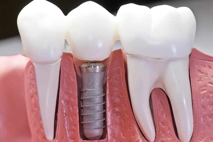 How Much Do Dental Implants Cost In Mesa Eastport Dental