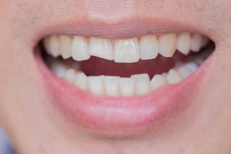 chipped-tooth-repair-mesa-az