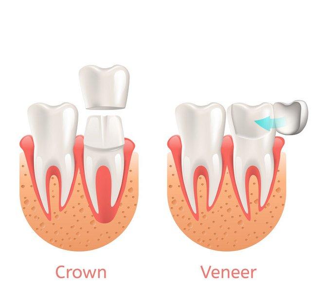 Dental Veneer vs Crowns