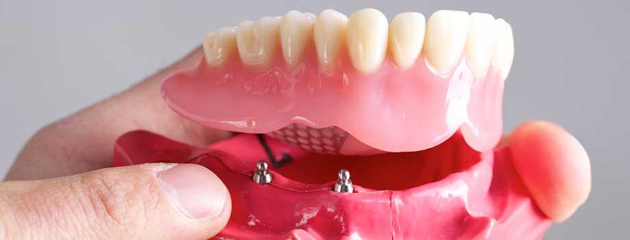 all-on-four-dental-implants-mesa-az