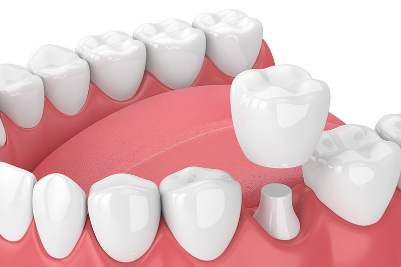 mesa-az-dental-crowns