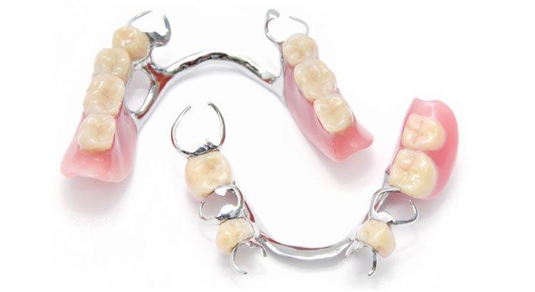 partial-dentures-mesa-az