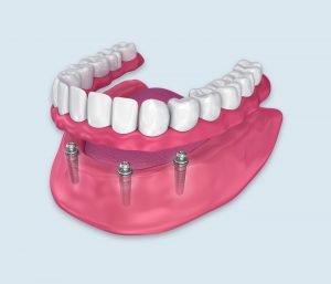 snap-on-dentures--az