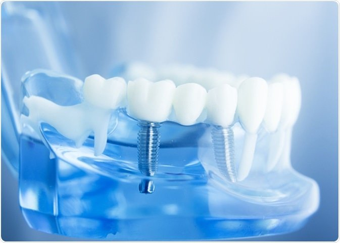 mesa-dental-implants