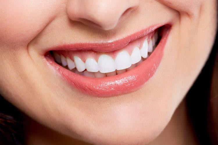 smile-makeover-mesa-az