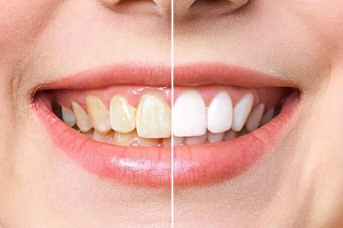 teeth-whitening-mesa-az